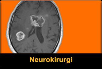 Neurokirurgi featured 340x230