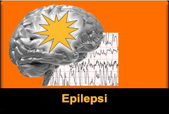epilepsi featured 340x320