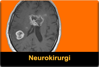 Neurokirurgi featured 340x230