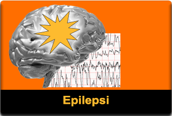 epilepsi featured 340x320